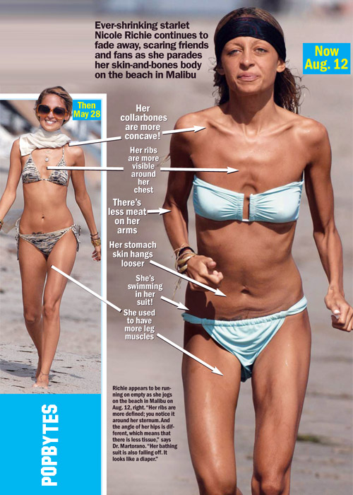 Nicole Richie Is Not Anorexic